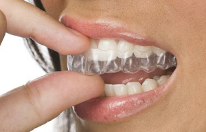 Clear Correct invisible Braces
