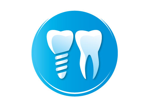 What are the advantages of dental implants over dentures?